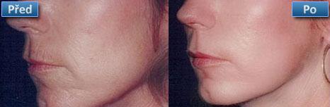 Laserové ošetření obličeje